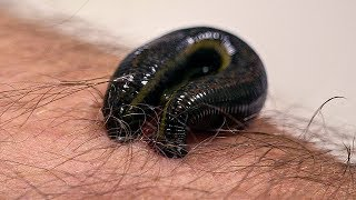 How Leeches are used in Modern Surgery | Earth Lab