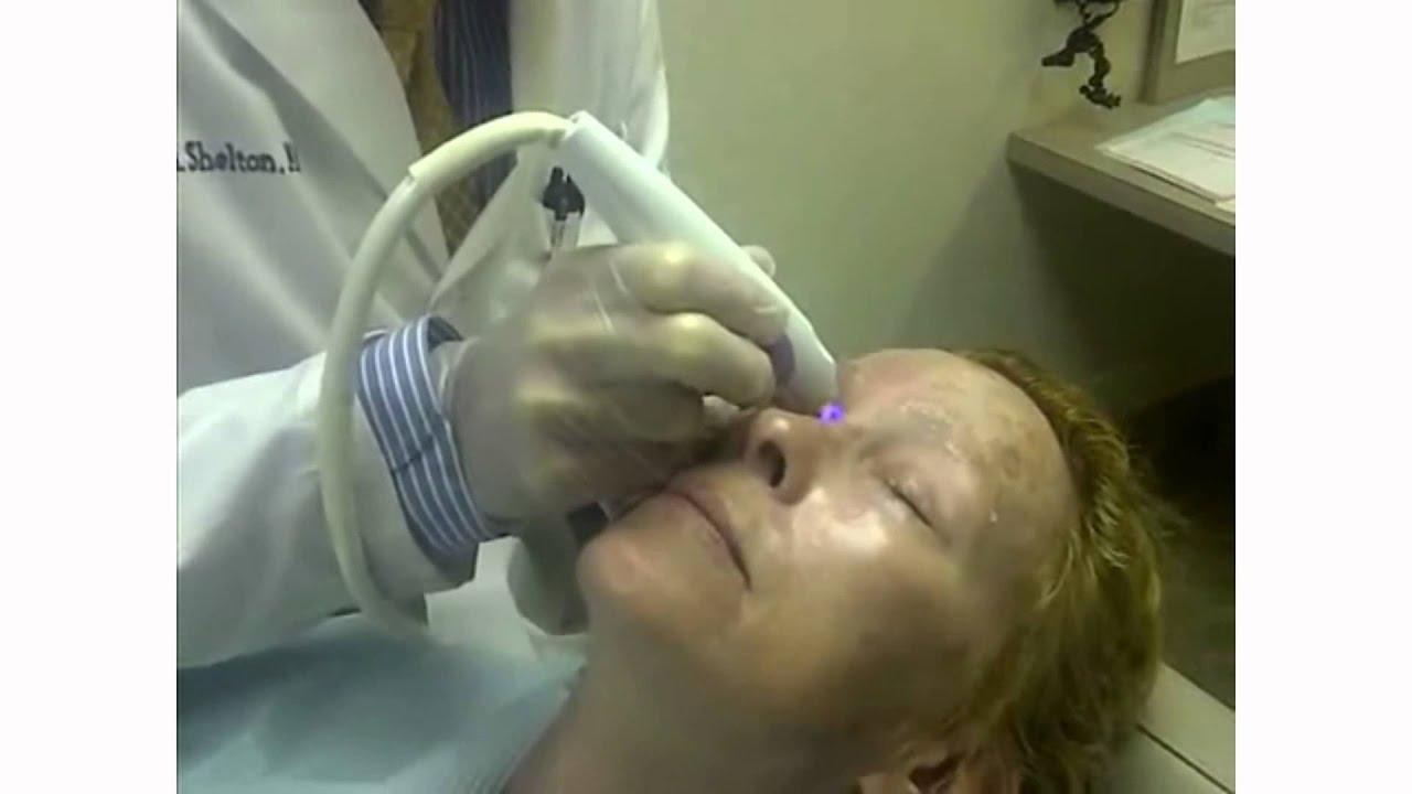 Fda approved facial regenerator couple