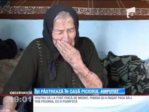 O batrana de 93 de ani isi pastreaza in casa piciorul amputat