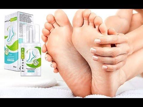 varicoza de brăzdare picior)