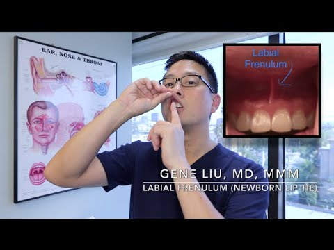 Newborns and Lip Tie (labial frenulum, frenum) and breastfeeding. Frenulectomy. Frenectomy.