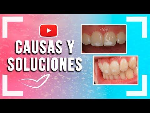 Manchas Blancas en los Dientes l Fluorosis Dental y otras causas y soluciones