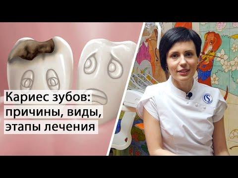 Кариес зубов - причины, виды, этапы лечения | Терапевтическая стоматология