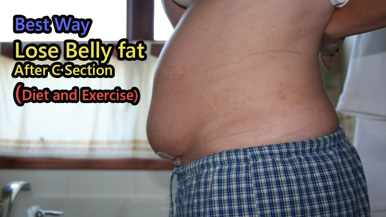 9414e85f5d814 How to Lose Belly fat After C Section (Diet and Exercise) - YouTube