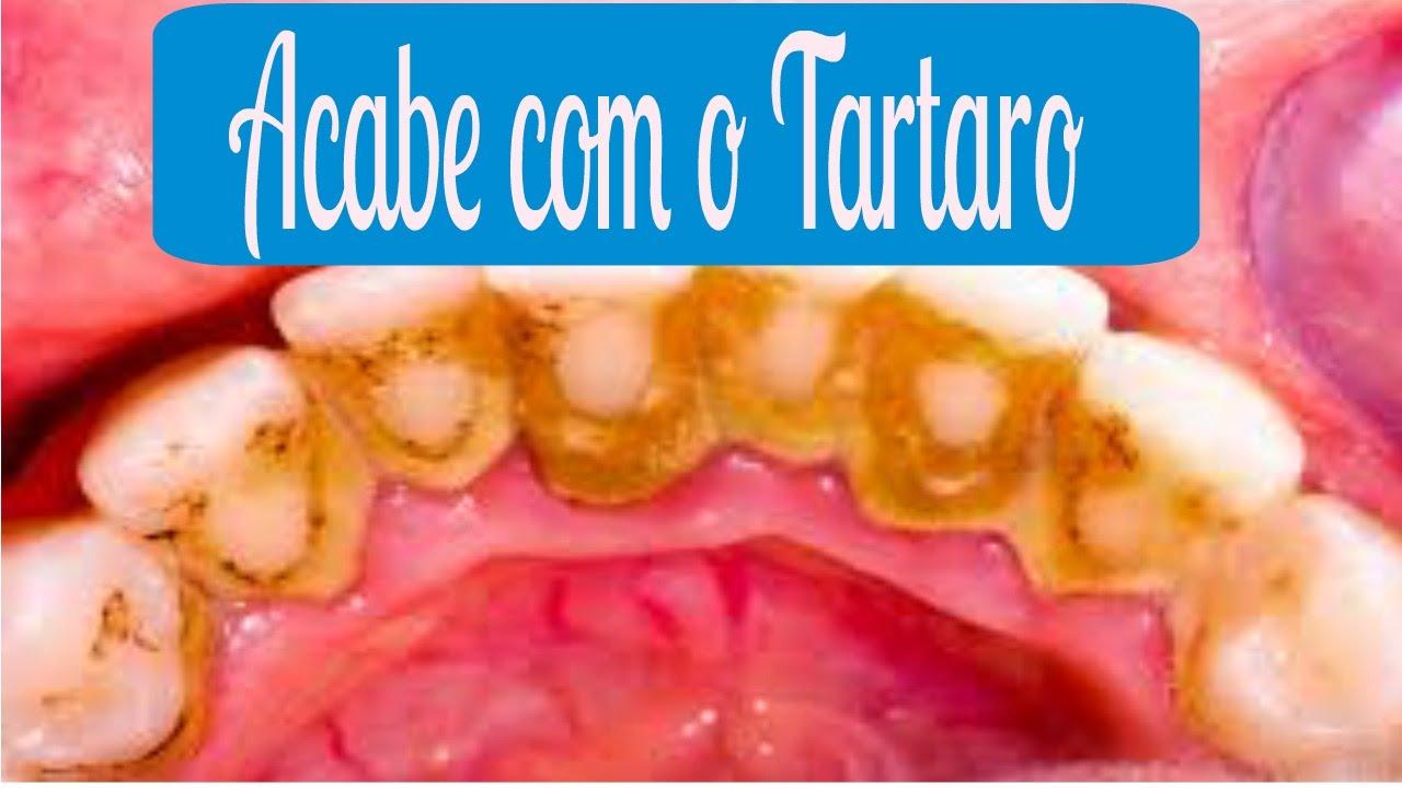 Remedio Caseiro Para Remover Tartaro Nos Dentes Remedios Naturais