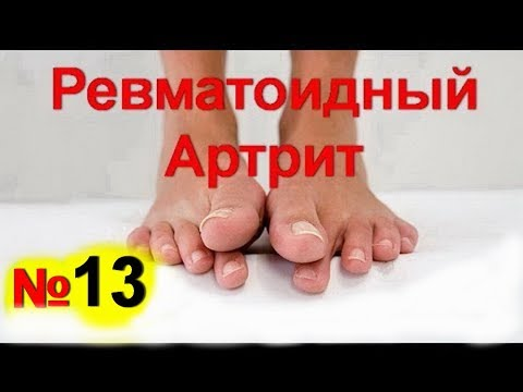 Шишка на суставе пальца руки: причины и лечение, признаки
