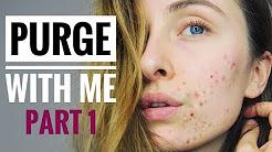 hqdefault - Can Salicylic Acid Make My Acne Worse
