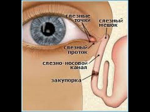 Семья Бровченко. Дакриоцистит у новорожденных. Массаж при закупорке слезного канала (дакриоцистите).