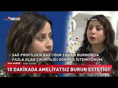 Basit Burun Estetiği Beyaz Tv Anahaber'de