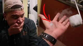 What does Liquid Nitrogen do to Your Hand?
