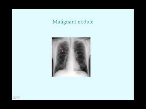 Lung Cancer - CRASH! Medical Review Series