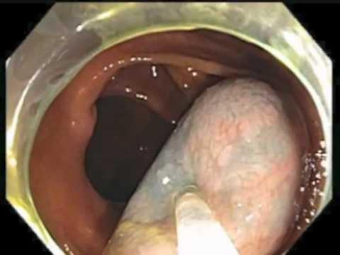 Colonoscopy Channel Subtle Lesion Hiding Under A Mucus