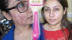 hqdefault - Acne Dermatitis Teens Shaving