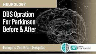 DBS Opration For Parkinson Before & After  عملية بطارية الدماغ  قبل و بعد لمرضي الباركينسون
