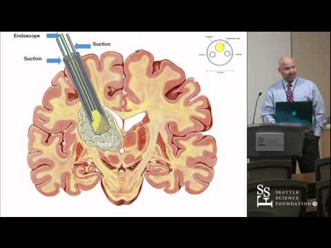 Minimally Invasive Parafascicular Approach to Subcortical Neoplasms by J.D. Day, MD