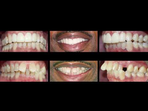 Invisalign and Dental Veneers at Cosmetic Dental Associates San Antonio, TX Dentist Office