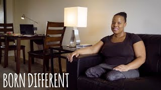 Double Amputee Mom With Twins | BORN DIFFERENT
