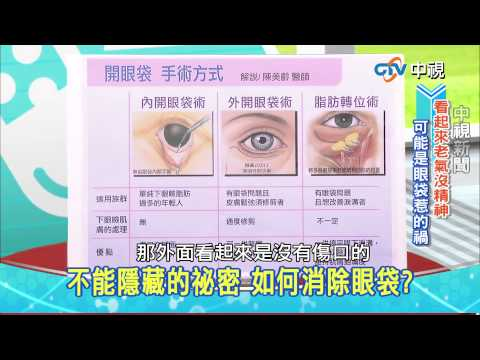 20150330【中視健康加油站】-眼袋我不愛