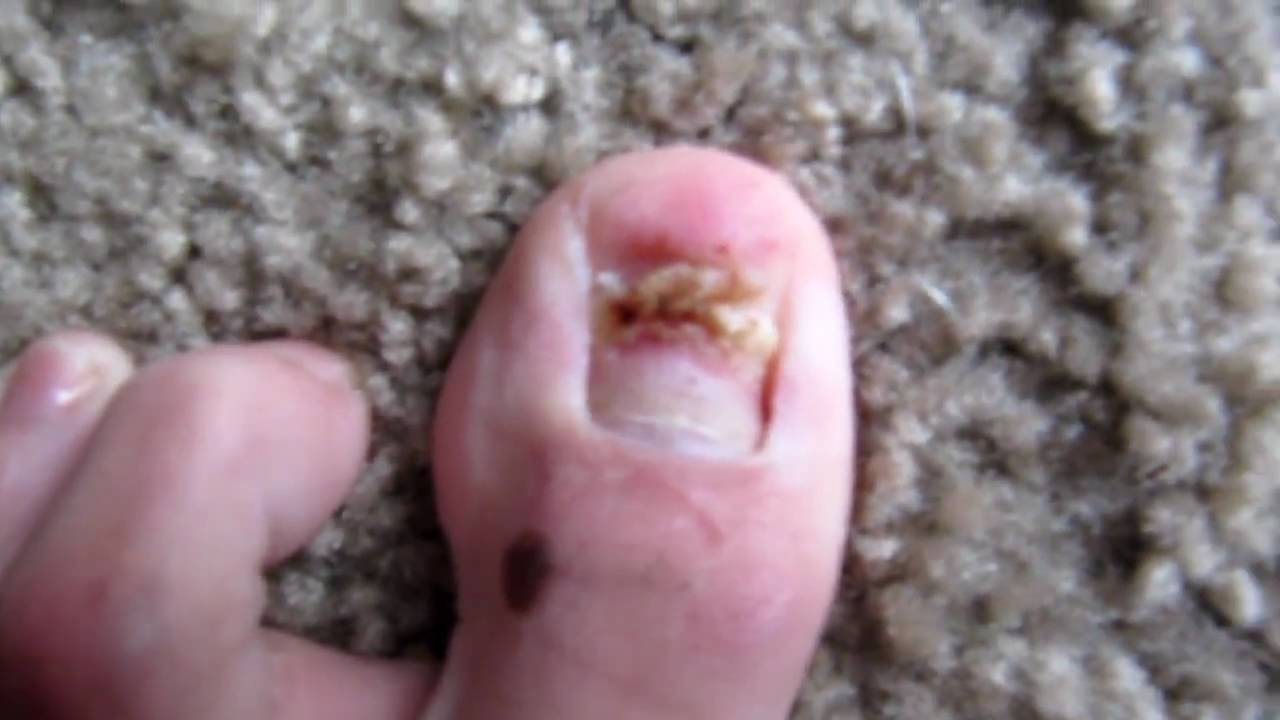 My toenail fell off today - YouTube