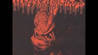Agathocles - Fascination of Mutilation flexi ep - full