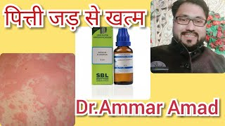 Urticaria Ya Pitti Cause Symptoms Treatment in Homeopathic