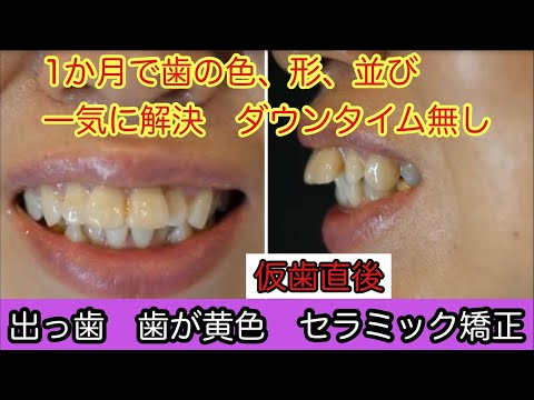 学生の頃から、前歯が出ているのが気になっていました。