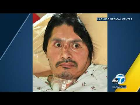 LAC+USC Medical Center seeking to identify patient | ABC7