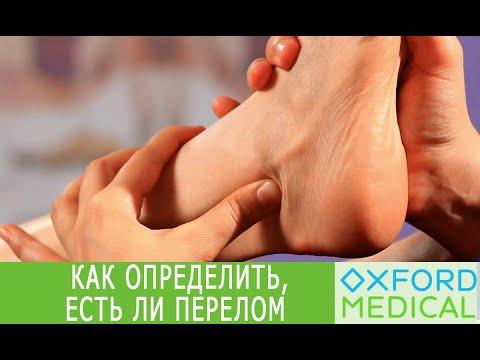Как распознать перелом ноги