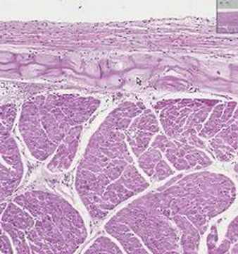 Shotgun Histology Heart Purkinje Fibers - YouTube