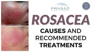 Rosacea - Triggers, Causes, and Treatments