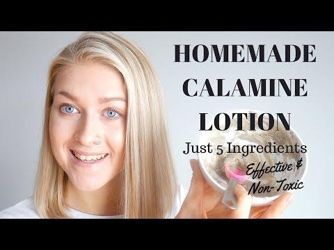 5-ingredient-diy-calamine-lotion-&-powder-/-homemade-calamine-lotion