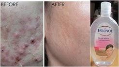 hqdefault - Eskinol Dalacin C Pimples