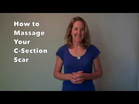 How to Massage Your C-Section Scar