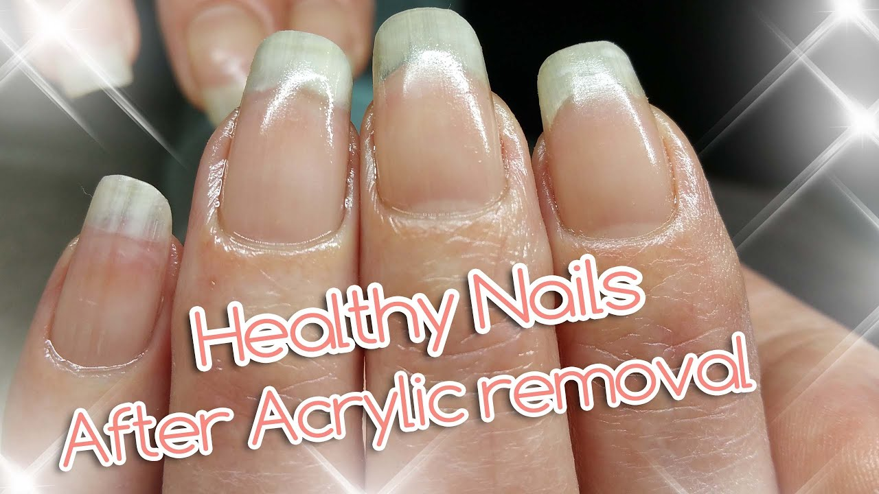 Acrylic Nail Removal For Healthy Nails Youtube