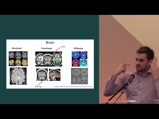 Thomas Littlejohns - The UK Biobank imaging project