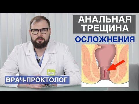 Осложнения анальной трещины если ее не лечить. Последствия