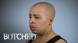 "Can ""Botched"" Doctors Help Patient With Ginormous Lips? 