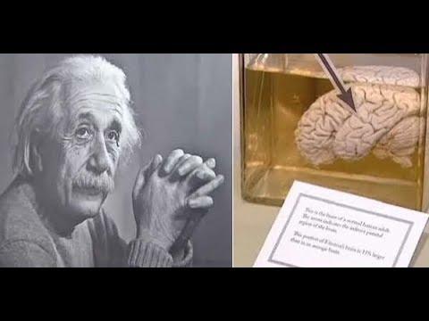 4 Koleksi Mengagetkan di Museum Mutter, Salah Satunya Otak Einstein!!