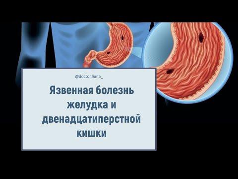Язвенная болезнь желудка и двенадцатиперстной кишки. Причины, лечение, диета.