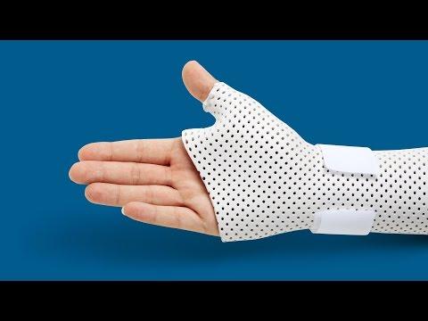 Перелом руки со смещением – лечение и реабилитация
