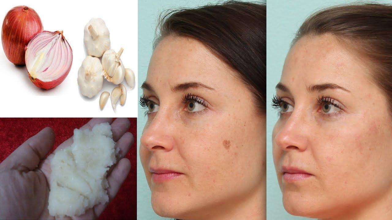32af7c79d ازالة بقع الوجه السوداء او البنية بطريقة سهلة وسريعة جدا |علاج البقع  الداكنة في البشرة في 10 دقائق