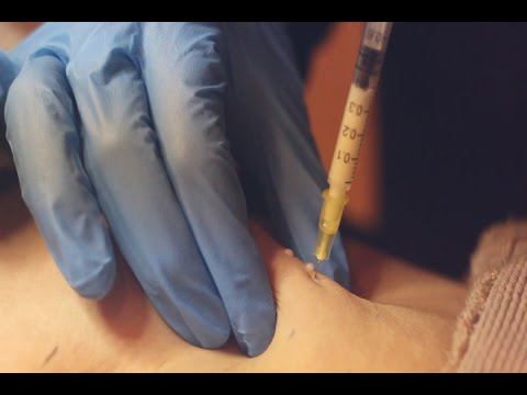 This Is Beauty | Lipolysis Treatment | For Advanced Fat Reduction