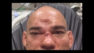 Cyborg's skull fractured by MVP (Worst MMA Injury Joe Rogan ever seen)