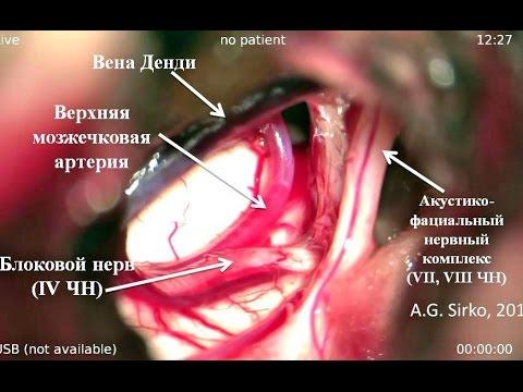 Тройничный лицевой нерв: симптомы, причины воспаления и