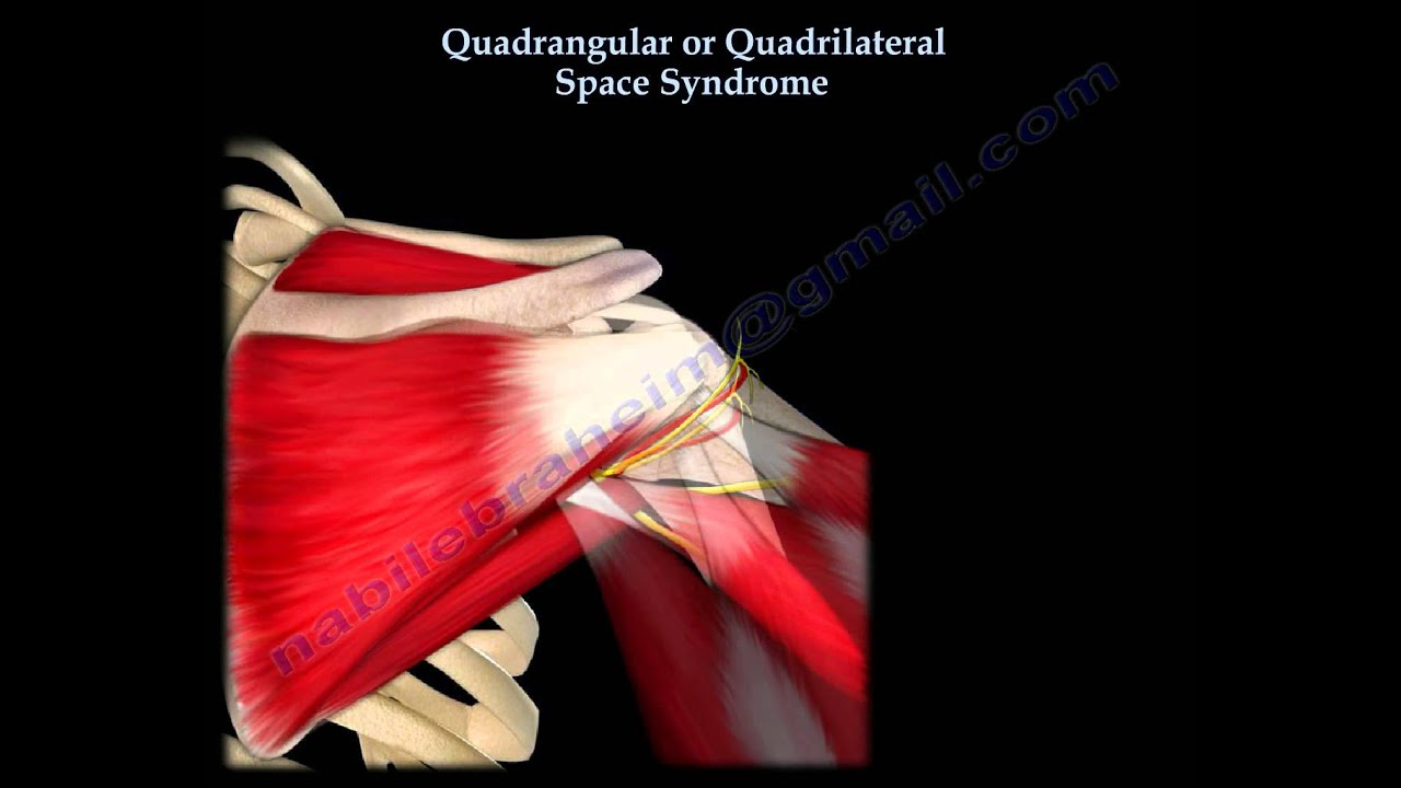 Quadrangular Or Quadrilateral Space Syndrome Everything You Need