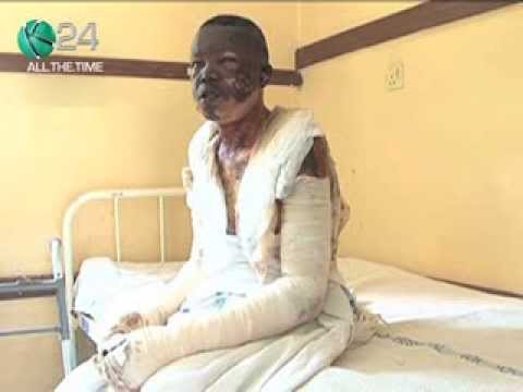 Young Man Survives Lynching And Lives To Tell The Tale