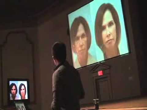 Fat Grafting Design, Master Techniques in Facial Rejuvenation, Nov. 14, 2011, St. Louis, MO