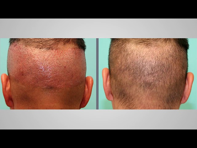 Dr  Michael Vories explains the meaning of  scarless  for FUE procedures