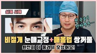 [실제 사례]남자 눈재수술, 첫 수술에서 쌍꺼풀이 다 …