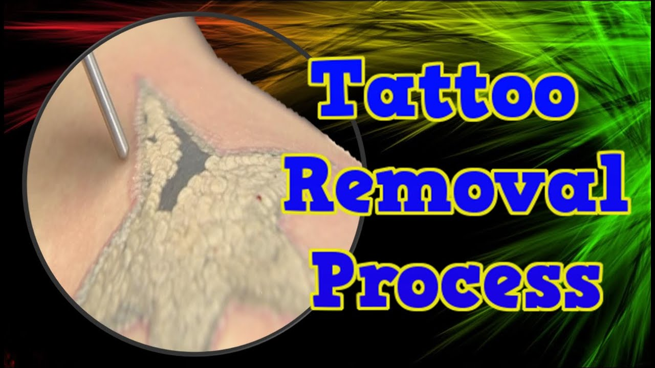 Tattoo removal process home remedies for tattoo removal for How to get rid of a tattoo at home